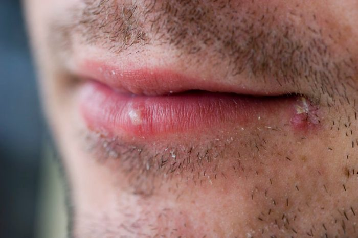 man with cold sore on mouth