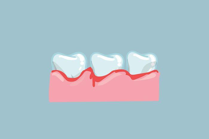 bleeding teeth