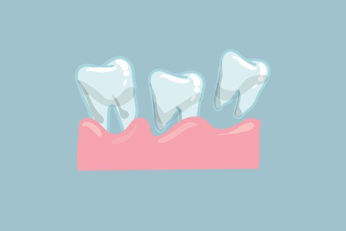 wiggly teeth