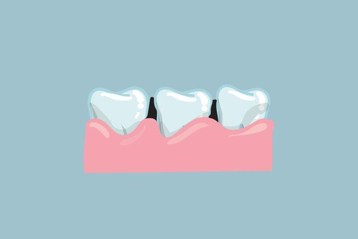 gum recession teeth