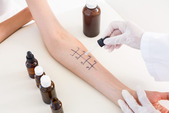 Doctor doing skin allergy test at her patient in medical office