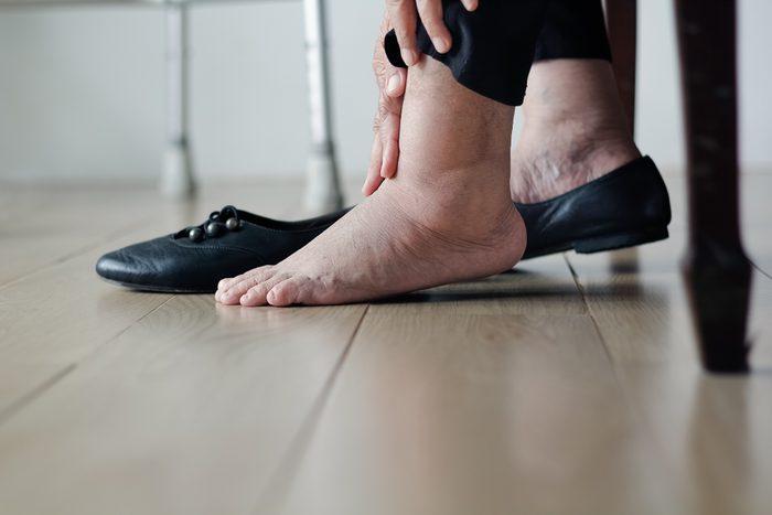 swollen feet insulin resistance