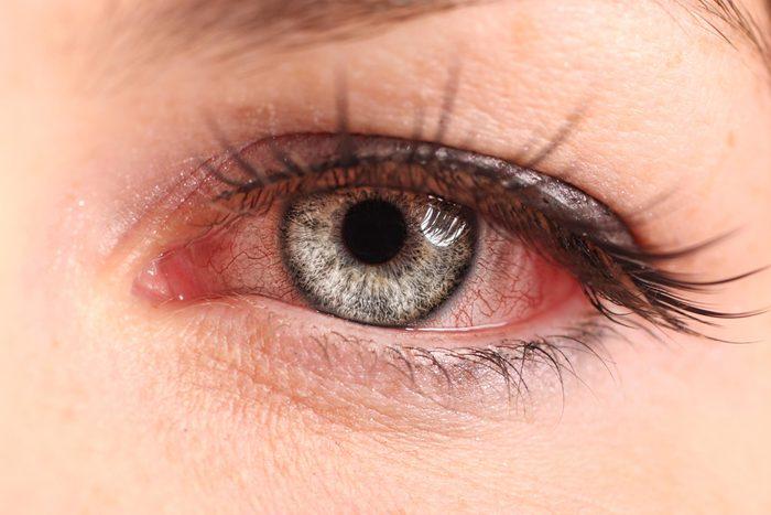 woman pink eye
