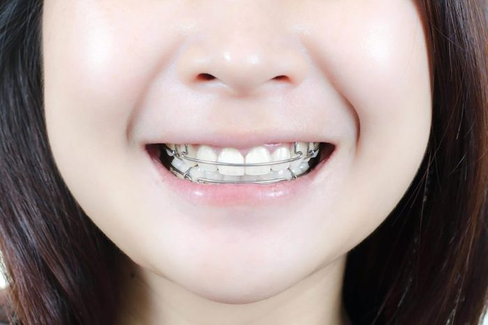 Smiling girl with a retainer her mouth.