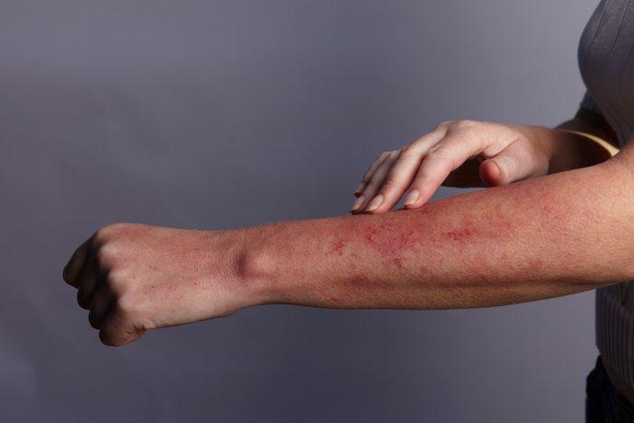 close up of rash on arm