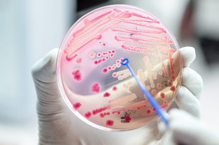 gloved hand holding lab plate with bacteria and swab
