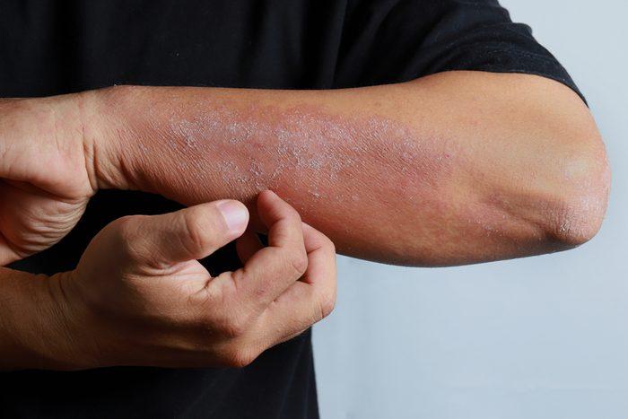 man scratching eczema on his arm