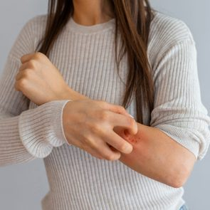 cropped shot of woman scratching arm