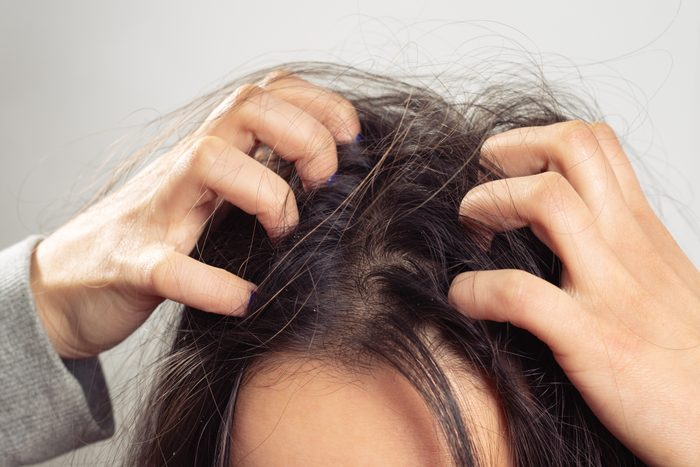 close up of woman scratching scalp with dandruff