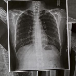 12 Silent Signs Your Lungs Could Be in Trouble