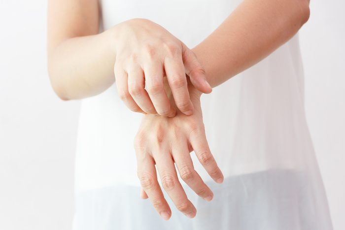 Women scratch the itch with hand / arm itching / Concept with Healthcare And Medicine.