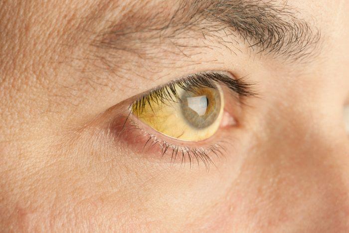 yellow jaundice eyes