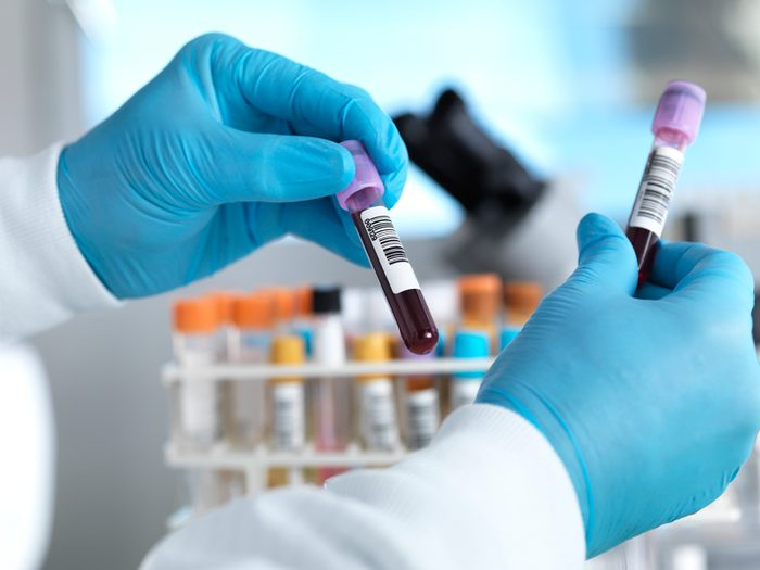 hands holding blood samples in laboratory