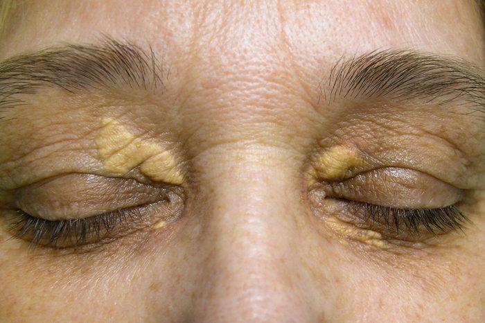 Xanthelasma on the skin of the eyelids