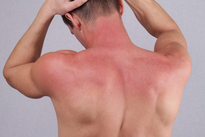 Man with sunburn. Sun skin care