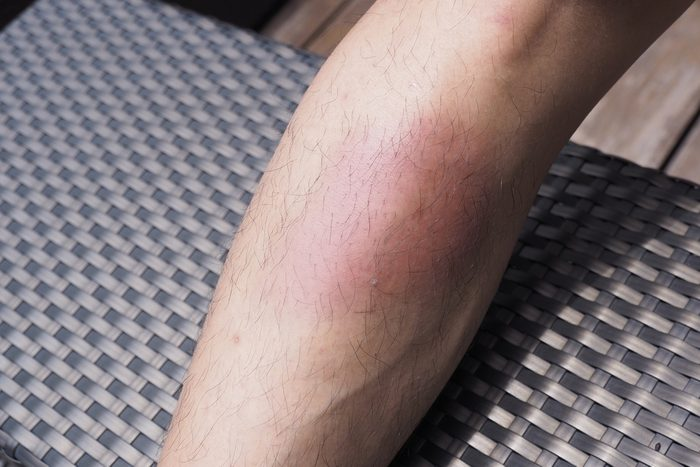 close up of a big lower leg bruise