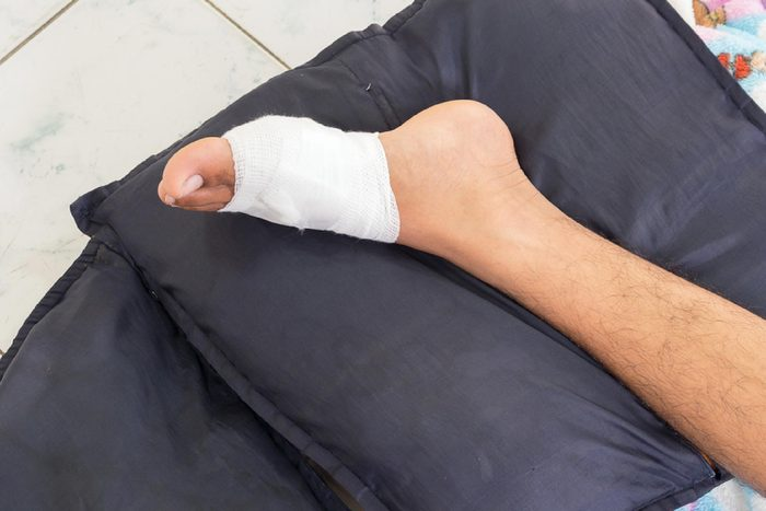 Gauze bandage the treating patients with man is wrapping his foot injury