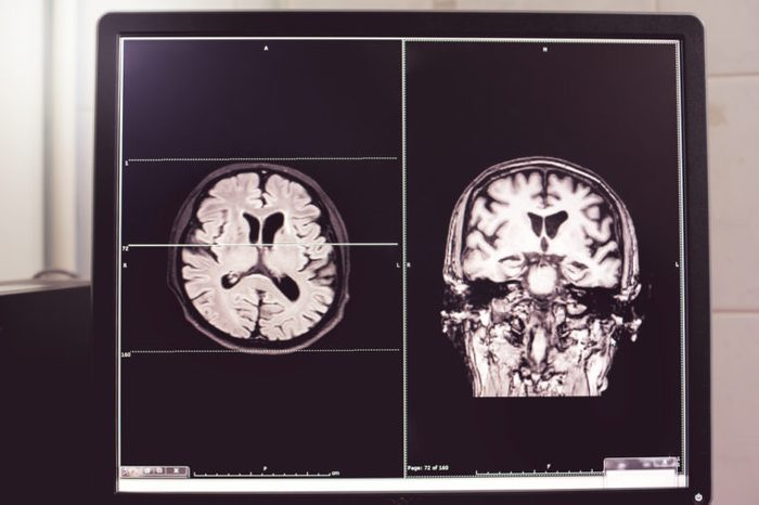 MRI brain scans of Dementia patient