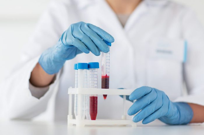 Scientist holding tube with blood sample