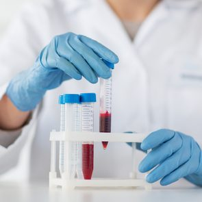 science, chemistry, biology, medicine and people concept - close up of young female scientist holding tube with blood sample making and test or research in clinical laboratory
