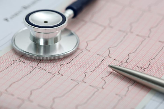 Stethoscope head and silver pen lying on cardiogram on clipboard pad