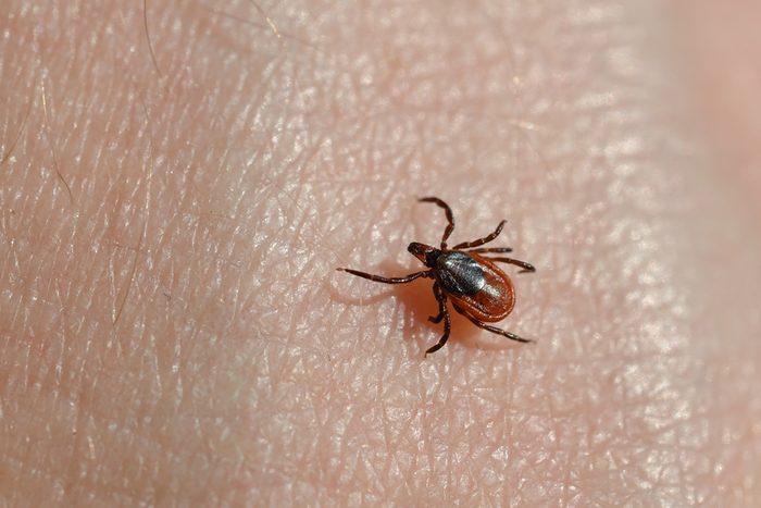 Ixodes scapularis tick crawling on skin
