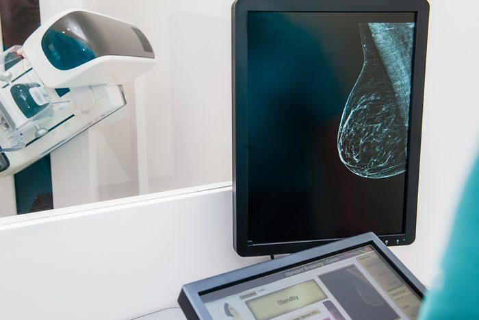 breast mammogram image on monitor