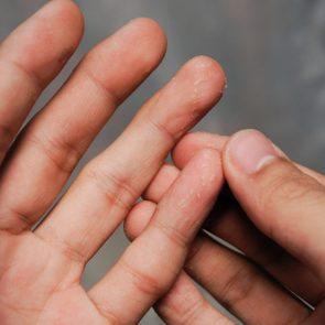 Closeup of Eczema Dermatitis on Back of Fingers.