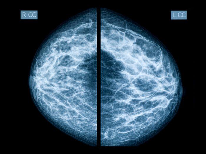mammogram scan