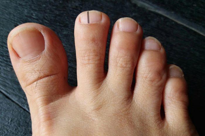 skin cancer nail