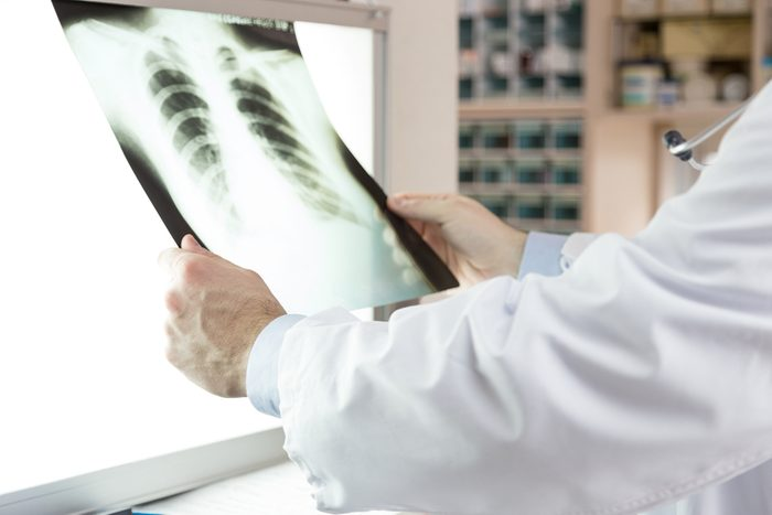 A doctor checking x-ray photo of patients. Xray of lungs. hospital. medical check.