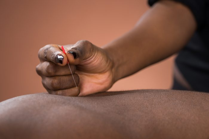 Young African Man Getting Acupuncture Treatment In Spa