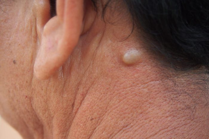 Person's neck with a sebaceous cyst.