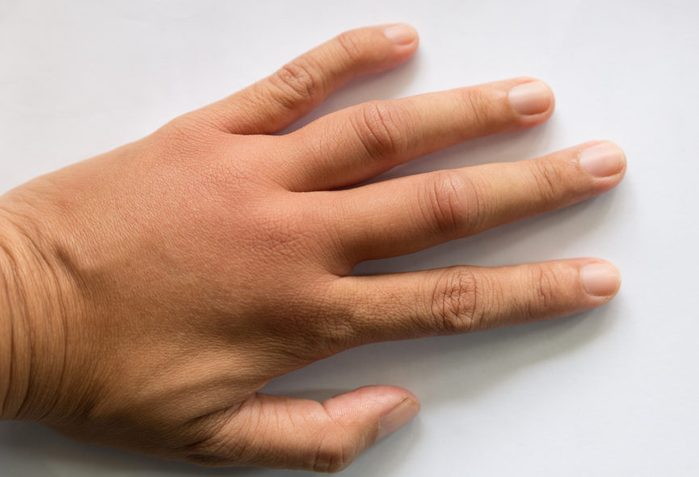 swollen hand from wasp insect sting