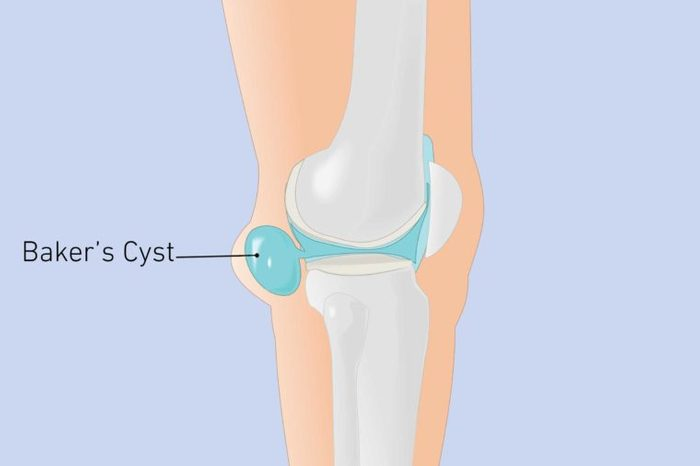 Illustration of a knee joint with baker's cyst.