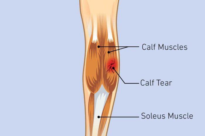 Illustration of a knee joint with a calf strain.
