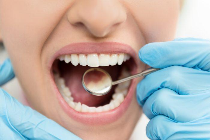 closeup of dental exam