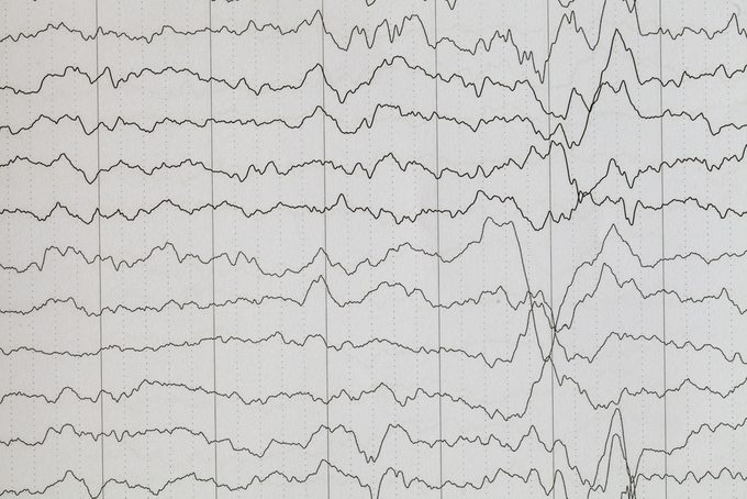 Brain wave on electroencephalogram ,EEG wave background