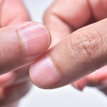 Here's What It Means If You Have Ridges on Your Nails