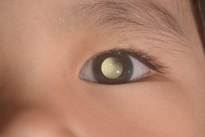 close up of the leukicoria eye