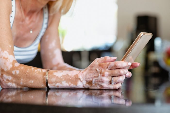 vitiligo on woman's arms