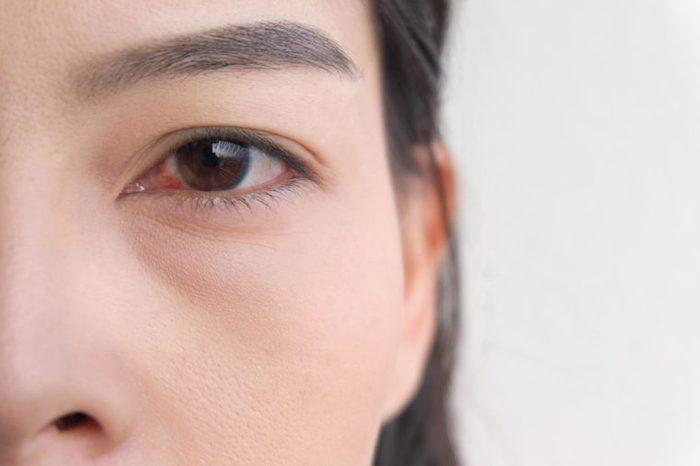Closeup of a woman with a bloodshot eye.
