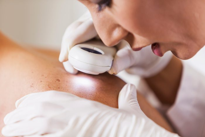 dermatologist examining patient's skin for skin cancer