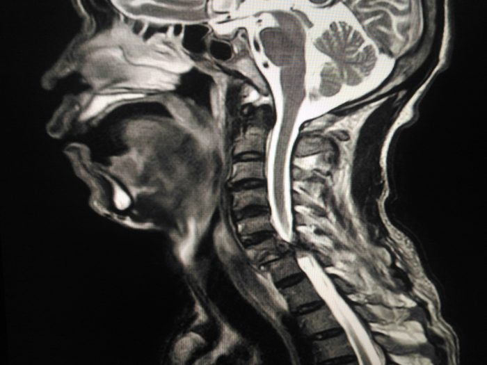 MRI Cervical spine Suspected unilateral interfacetal dislocation at C6-C7 vertebrae,with spinal myelopathy at C6-7 levels,abnormal high signal intensity on T2WI and STIR- along spinal myelopathy