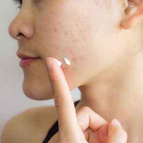 woman applying moisturizer to acne on face