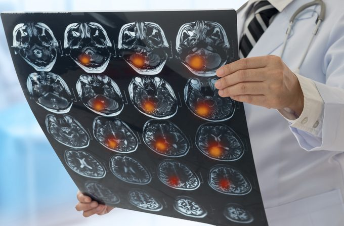 doctor holding scans of patient's brain