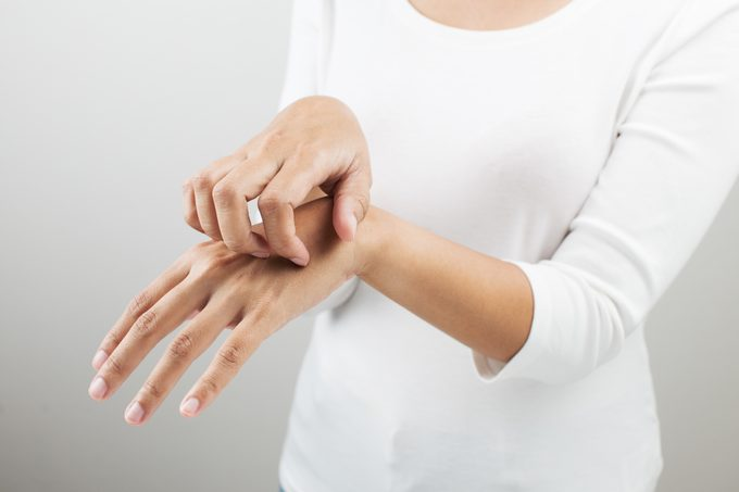 close up of woman scratching hand
