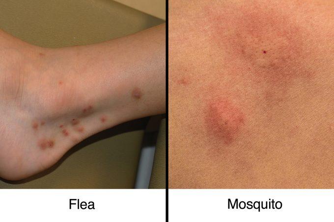 fleabite vs mosquito bite