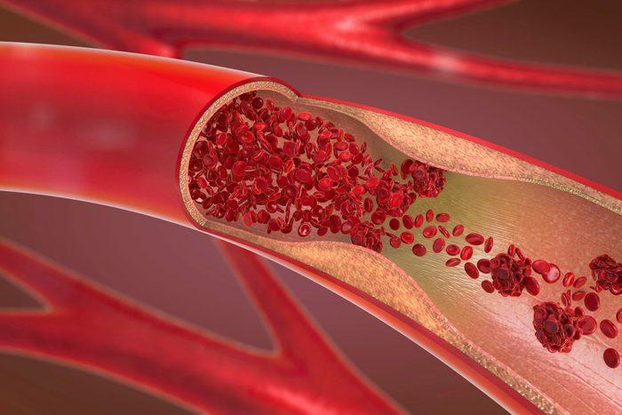 Arteriosclerosis, illustration