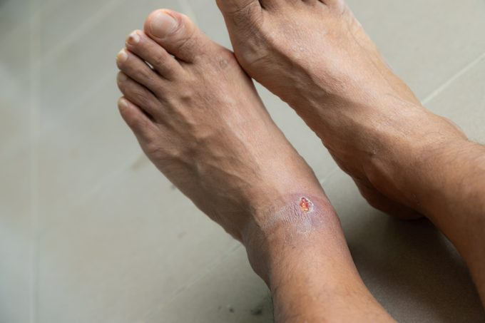 Foot ulcers caused by disease, health care concept.
